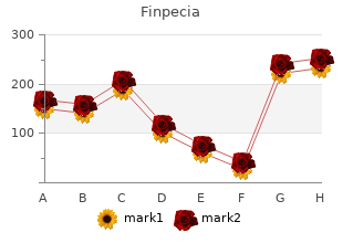 discount finpecia 1mg with mastercard